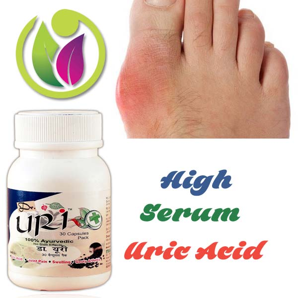 gout treatment vitamin c lower uric acid levels in blood gout homeopathic treatment
