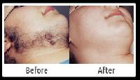 Chin Hair Removal Services