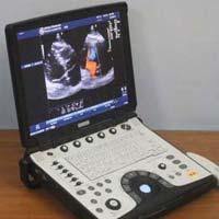 portable ultrasound machine price in india
