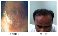 Hair Fall Clinic In Bangalore
