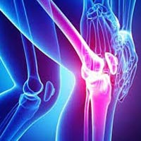 Yoga Treatment for Osteoarthritis