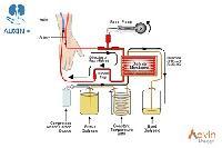 Haemodialysis Dry Powder
