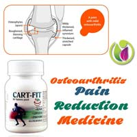 Osteoarthritis Pain Reduction Medicine