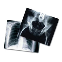 X-ray Films