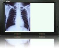 X-ray Film Viewers