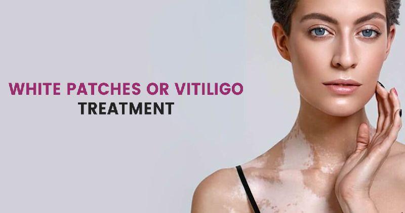 Services Vitiligo Treatment In Gurgao From Haryana India By New Look Laser Clinic Id 5443338
