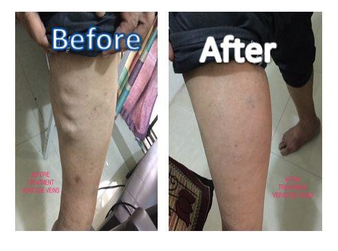 Varicose Vein DTAAC Treatment