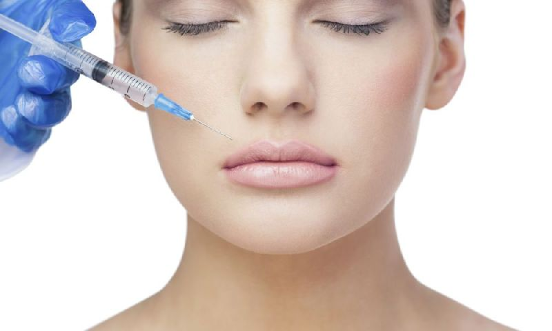 Dermal Filler Injection (BIO38750-72)