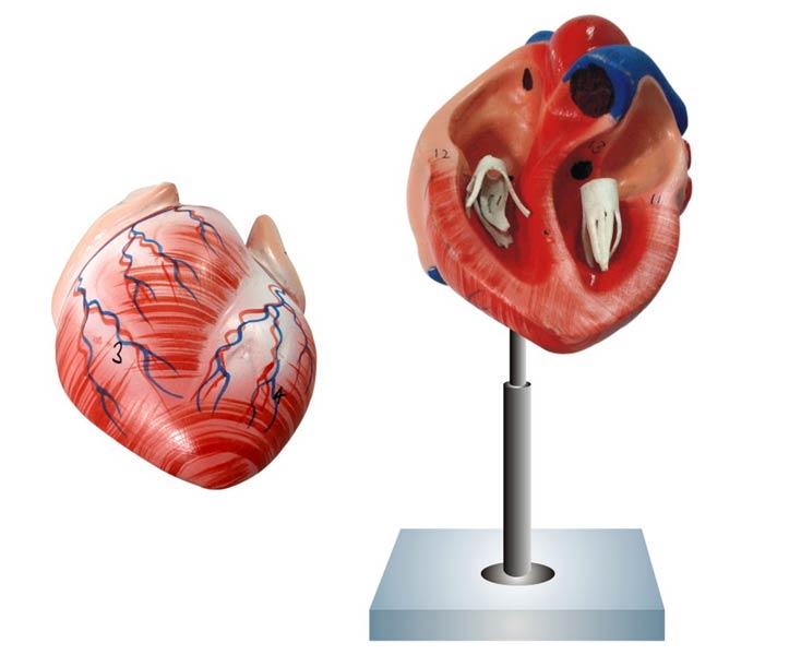 Human Heart Manufacturer In Ambala Haryana India By Abbot Abbot