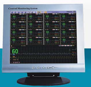 MM-C001 Central Patient Monitor System (MM-C001 Central Pati)