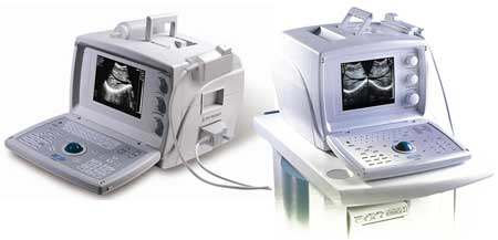Portable Ultrasound System MM-US003 (MM-US003 Portable Ul)