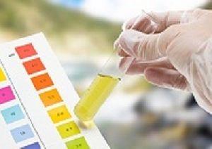 Urine Testing Services