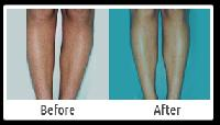 Laser Hair Removal Treatment Services