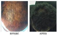 Hair Regrowth Treatment Clinic In Bangalore