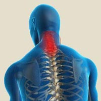 Yoga Treatment For Cervical Spondylitis