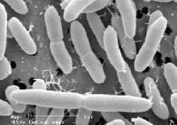 Human Probiotic Capsules (Lactoplus)