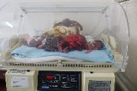 Neonatal Intensive Care Incubator
