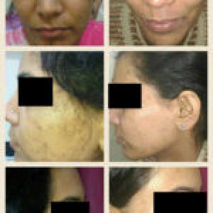 Cosmetic Skin Treatments Services