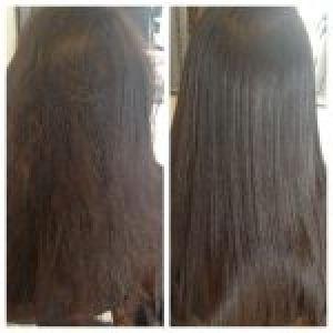Hair Fall Treatment Services