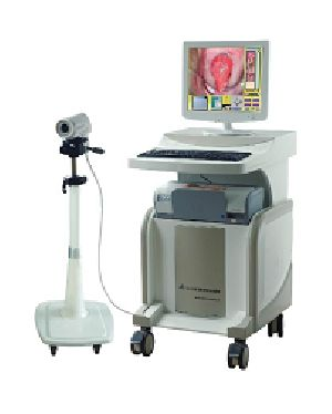 Gynecology Digital Electronic Colposcope