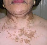 Vitiligo Treatment Services