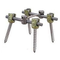 Spine Surgical Implants