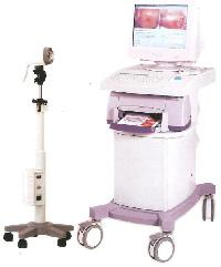 Digital Video Colposcope System