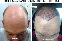 Hair Transplant Services